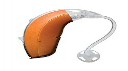 Hearing Aid by Smile Speech & Hearing Clinic