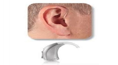 BTE Hearing Aid by Jaipur Speech & Hearing Center