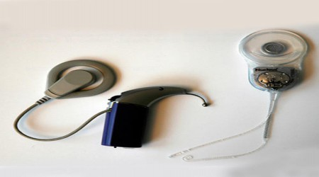 Cochlear Implant Hearing Aid by Aarohi Speech & Hearing Centre